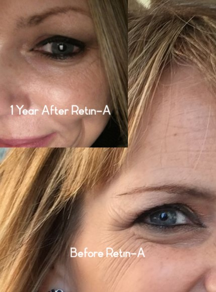 after tretinoin for fine lines and wrinkles