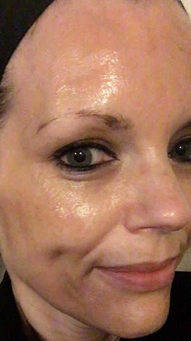 glycolic for anti-aging - Rachel Sheridan