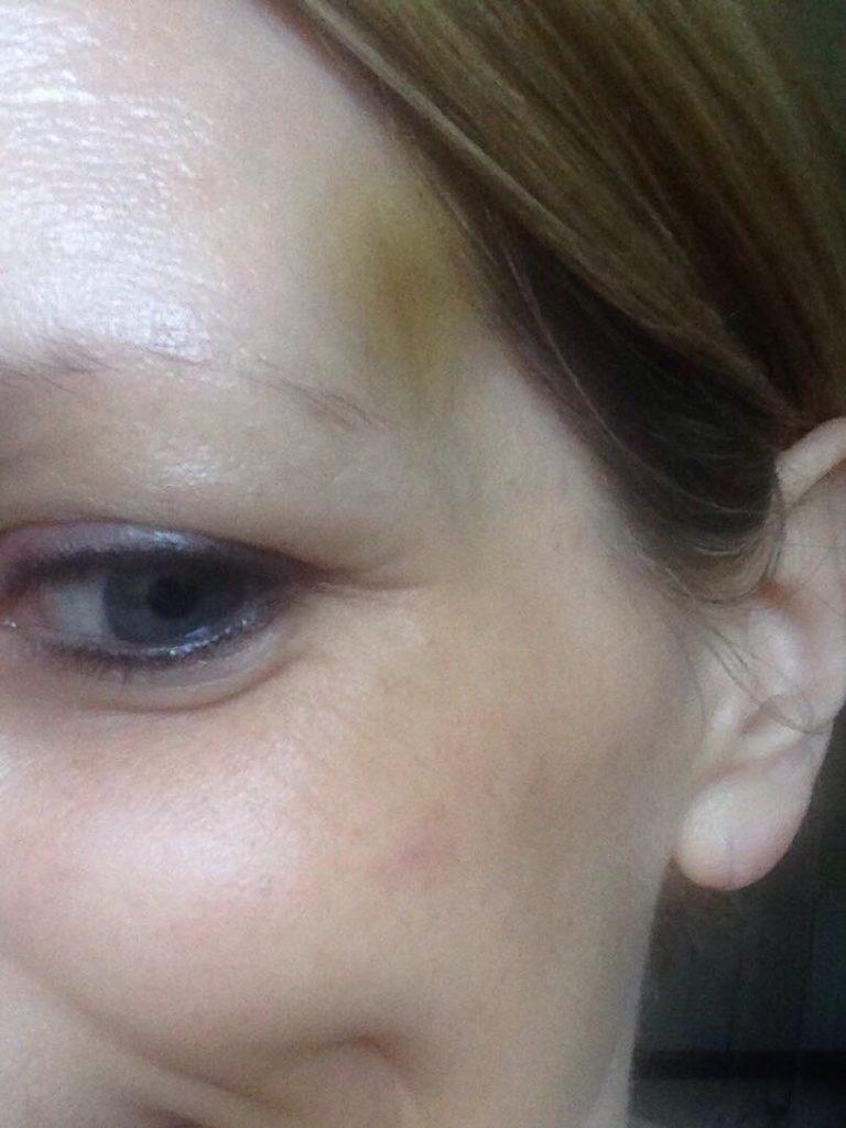 tca peel damage - Rachel Sheridan