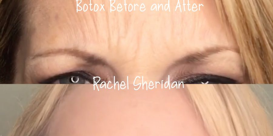 best botox before and after