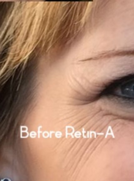 Retin-A results