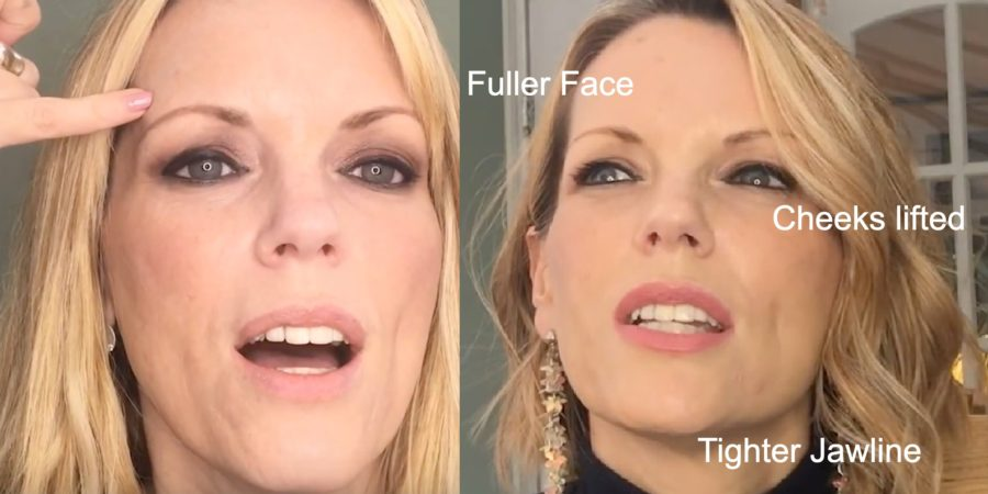 before and after anti-aging skin care